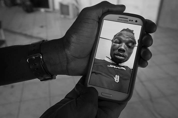 Una foto di Mustafà, rifugiato del Gambia, dopo lo sgombero. Credit: Danilo Balducci