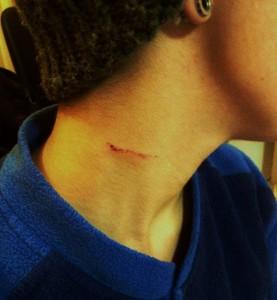 napoli  ferita coltello